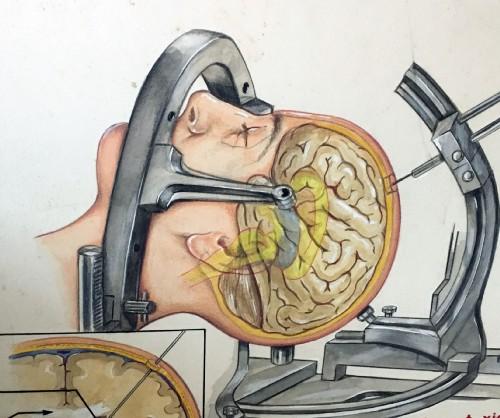 Ám ảnh ca cấy ghép đầu khỉ thành công đầu tiên trên thế giới - cay ghep dau 1