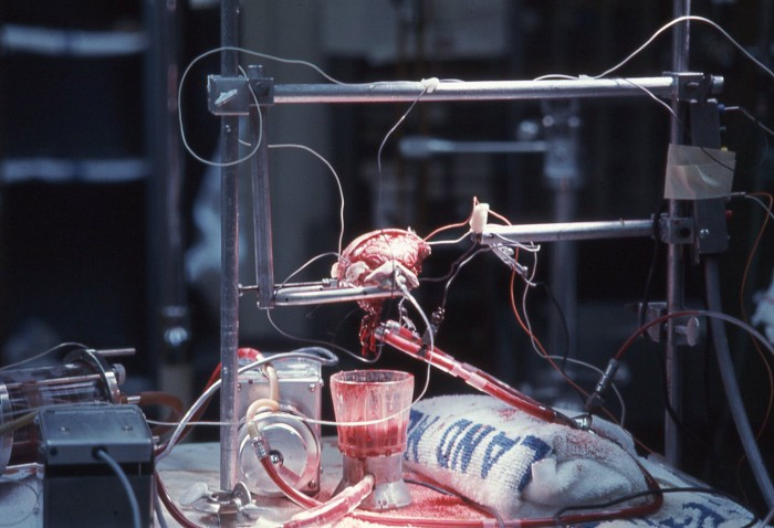 Ám ảnh ca cấy ghép đầu khỉ thành công đầu tiên trên thế giới - cay ghep dau 3